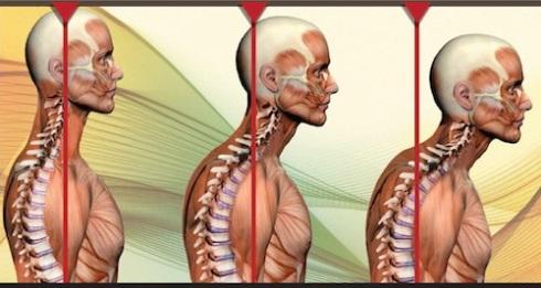 postura-testa-ansia-stress